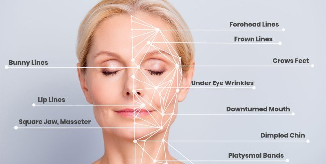 anti-wrinkle-treatments-buckinghamshire